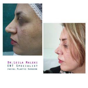 جراحی بینی طبیعی در خانم ها