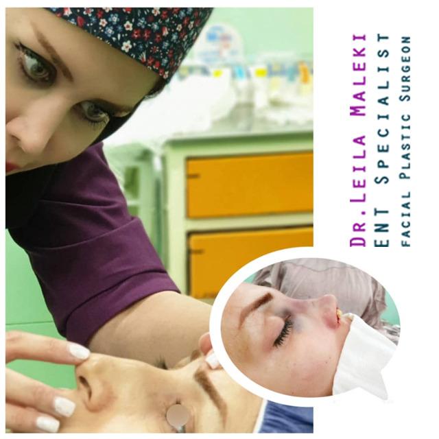 جراحی زیبایی بینی در زنان