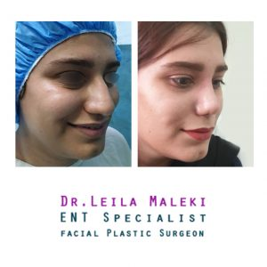 جراحی زیبایی بینی گوشتی در خانم ها