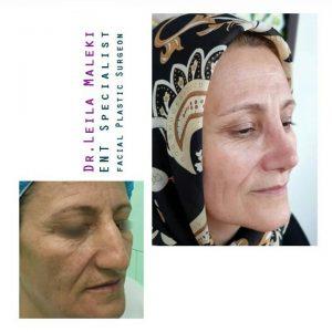 جراحی بینی در افراد سن بالا