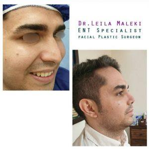 جراحی بینی طبیعی در مردان