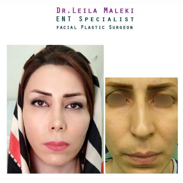 جراحی زیبایی انحراف بینی