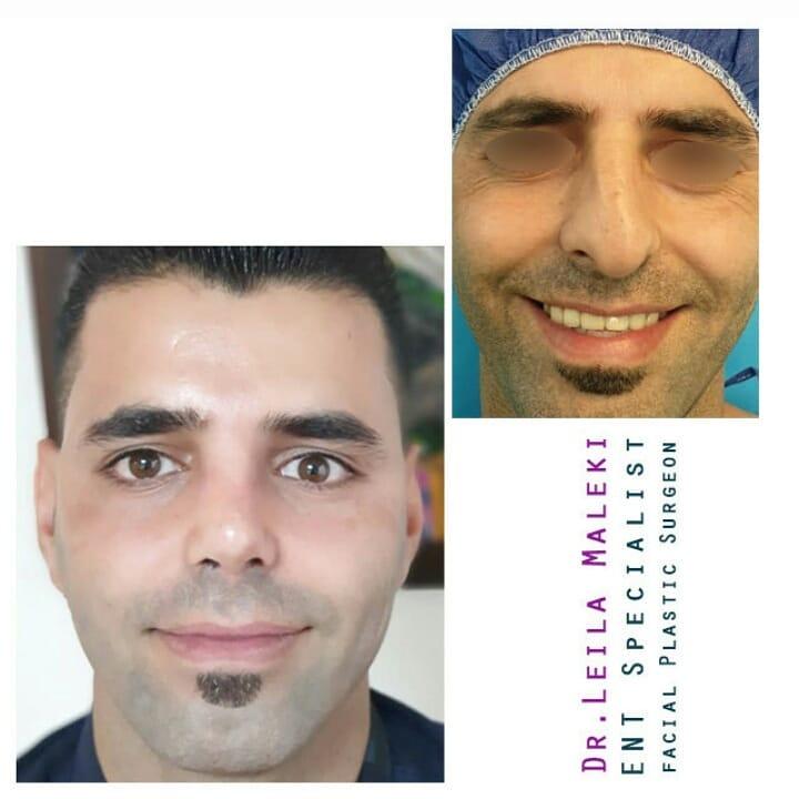 عمل بینی در مردان