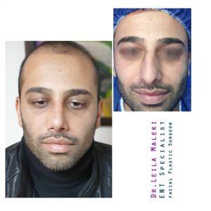 جراحی بینی مردانه