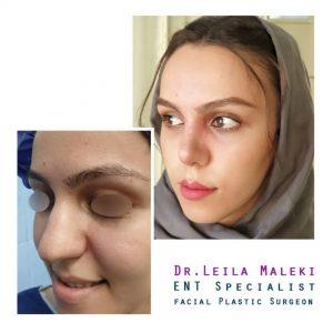 جراحی زیبایی بینی دکتر ملکی