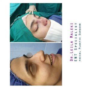 نتیجه جراحی بینی گوشتی