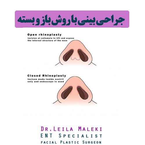 جراحی بینی با روش باز و بسته