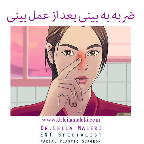 ضربه به بینی بعد از عمل بینی