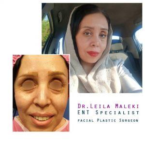 جراحی بینی در افراد سنین بالا
