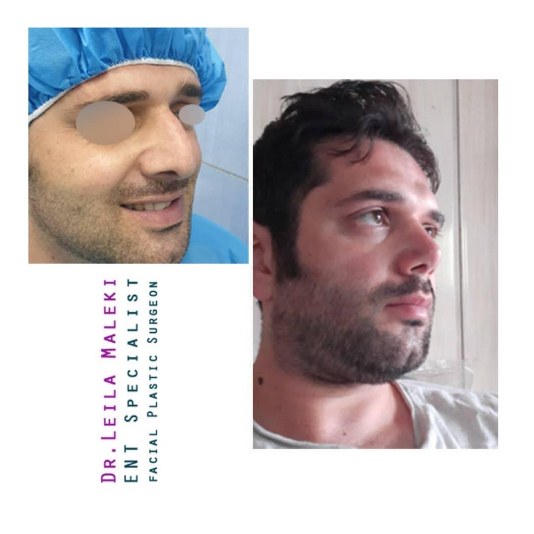 بهترین جراح بینی مردانه در تهران