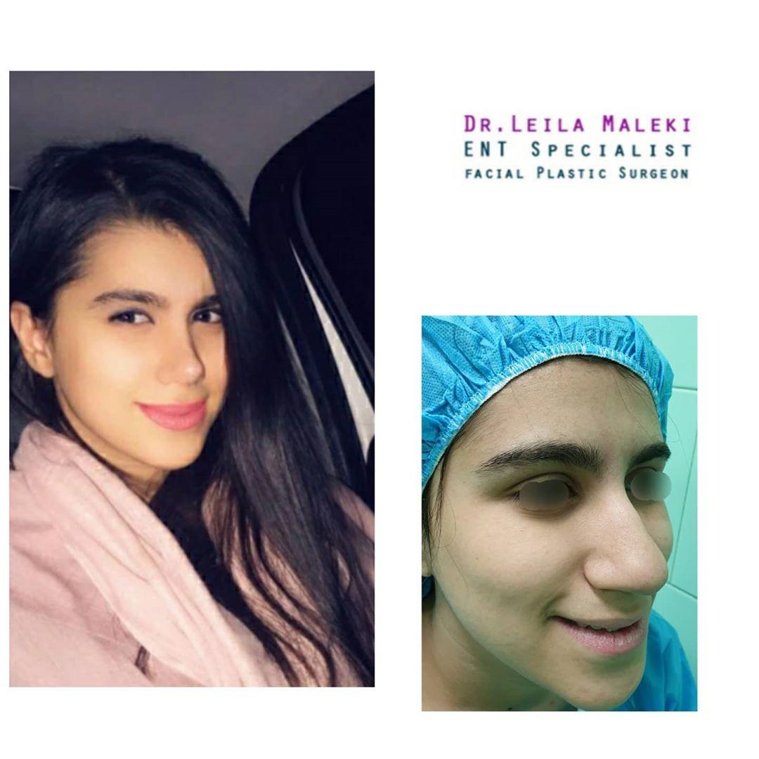 بهترین جراح بینی در سعادت آباد