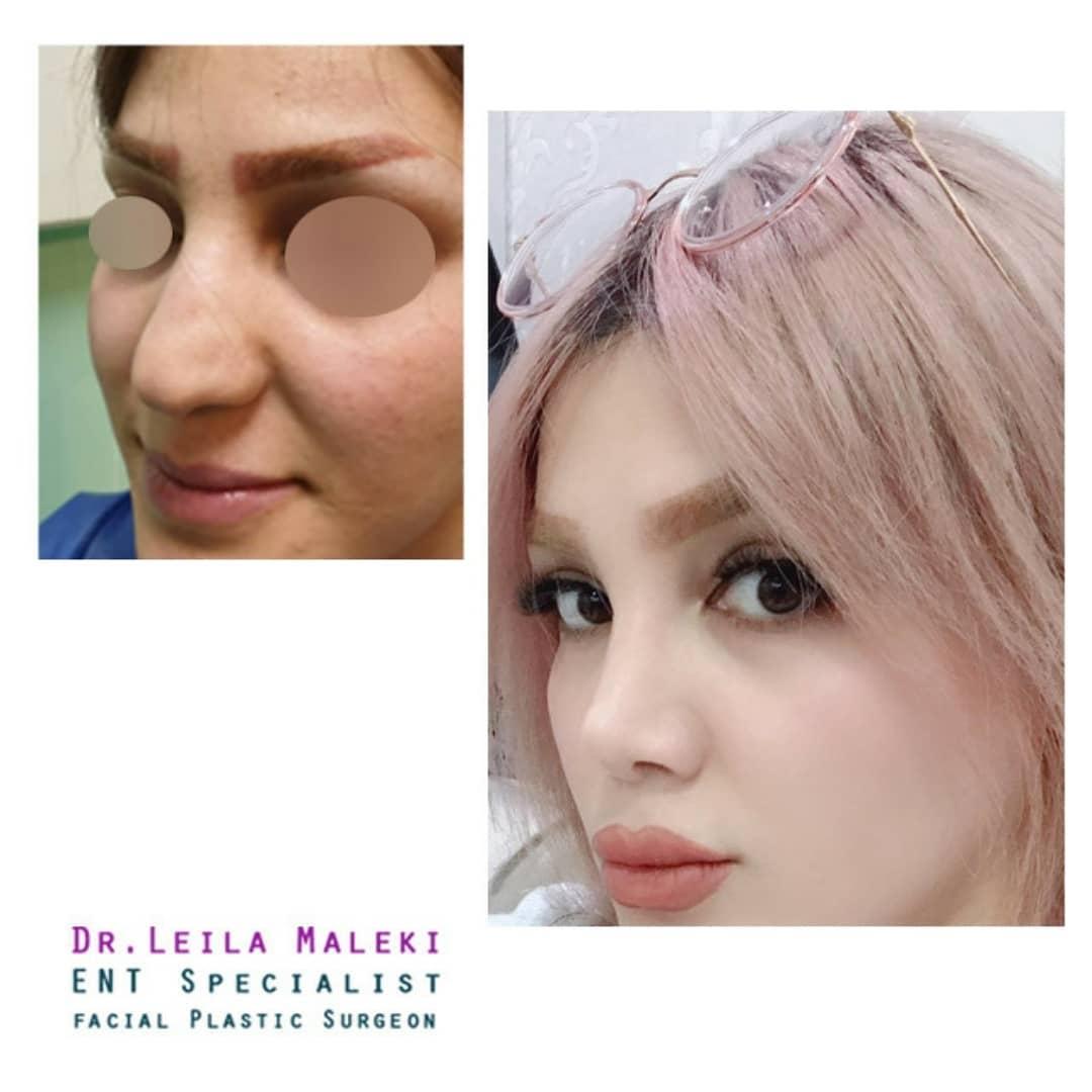 بهترین جراح بینی گوشتی در تهران