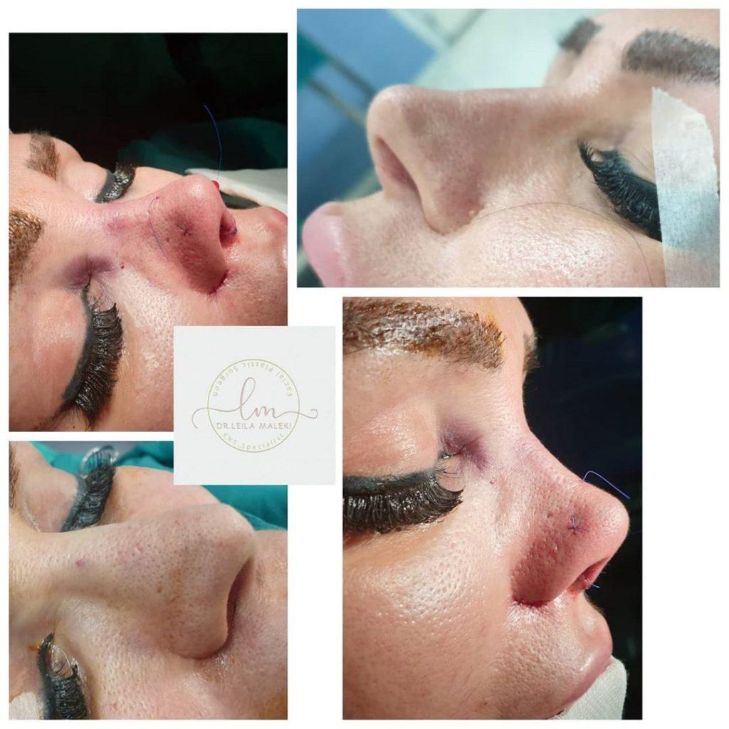 جراحی بینی ترمیمی دکتر ملکی
