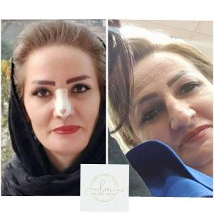 جراحی همزمان زیبایی بینی و پلکها و بوتاکس