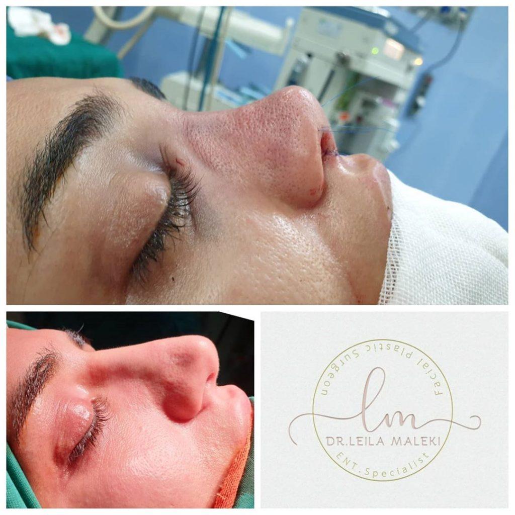 جراحی بینی ترمیمی با انحراف ظاهری و مشکل تنفسی