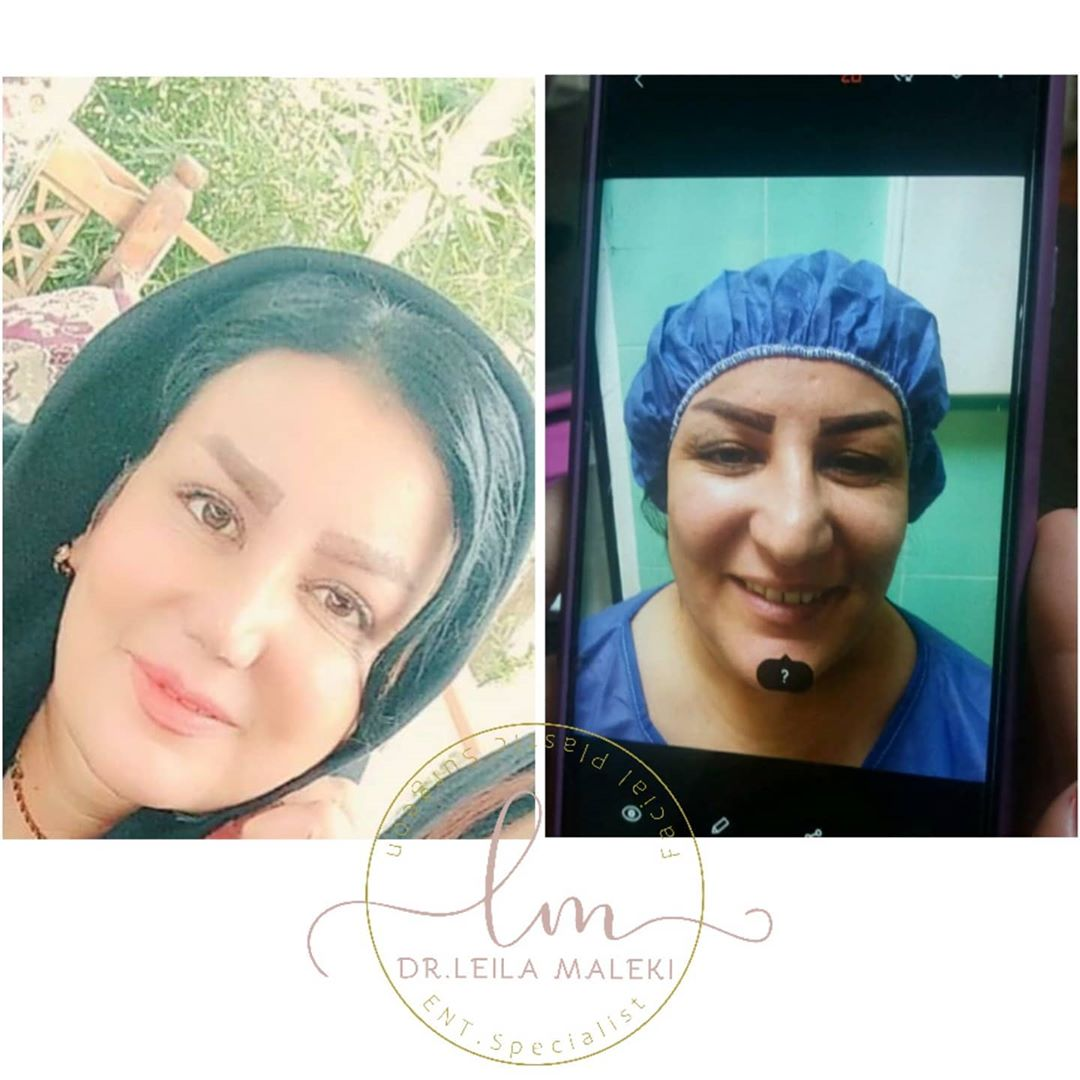 جراحی بینی و پلک پس از یکسال