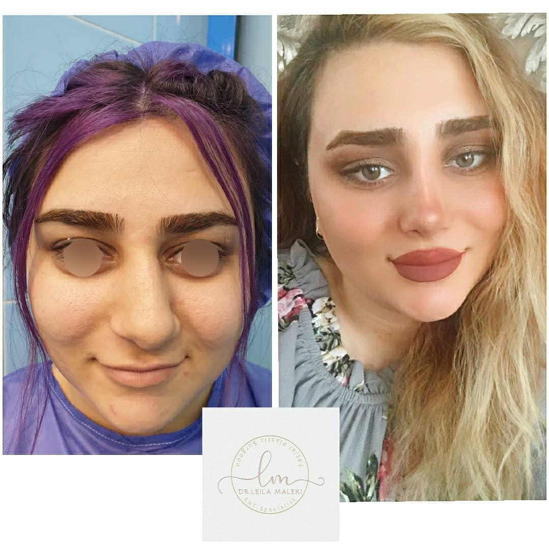 جراحی زیبایی بینی با انحراف بسیار شدید و پوست ضخیم و گوشتی یکماه بعد از عمل2