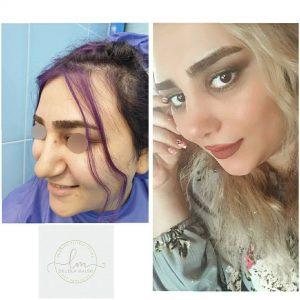 جراحی زیبایی بینی با انحراف بسیار شدید و پوست ضخیم و گوشتی یکماه بعد از عمل3