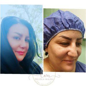یکسال پس از جراحی بینی و پلک