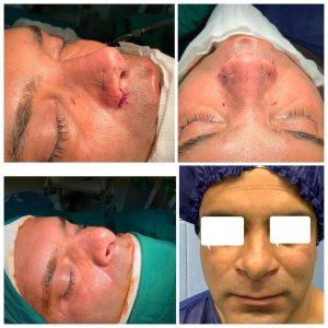 جراحی بینی در مردان تمامی رخ های صورت