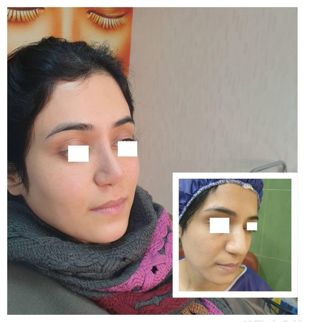 سه ماه بعد از جراحی زیبایی بینی و زاویه سازی صورت با تزریق چربی به روش نانوفت
