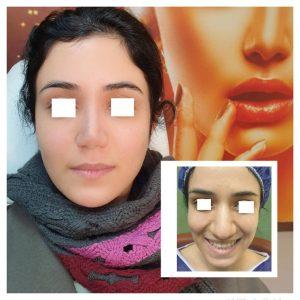 3ماه بعد از جراحی زیبایی بینی و زاویه سازی صورت با تزریق چربی به روش نانوفت