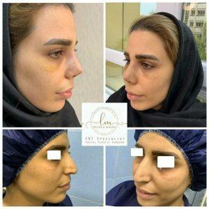 ده روز بعد از جراحی زیبایی بینی