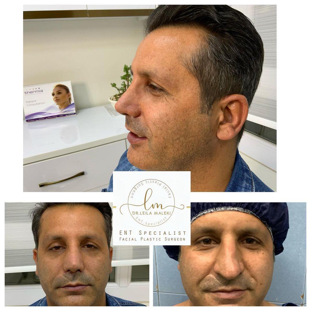 دوماه بعد از جراحی بینی گوشتی با دفورمیتی های شدید غضروفی به مدل طبیعی مردانه..