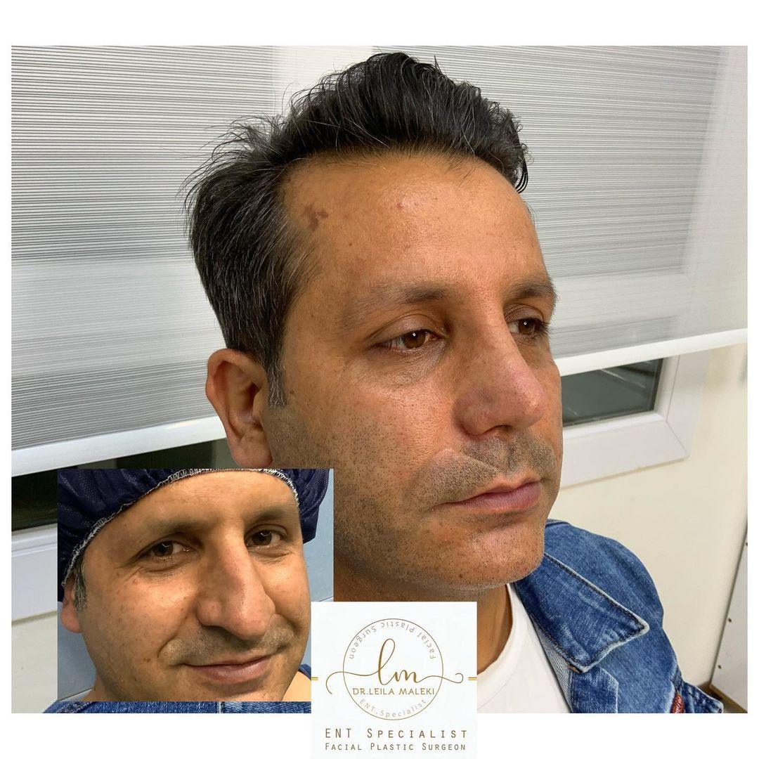 دوماه بعد از جراحی بینی گوشتی با دفورمیتی های شدید غضروفی به مدل طبیعی مردانه