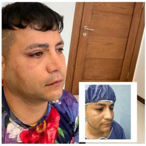 جراحی-بینی-در-مردان